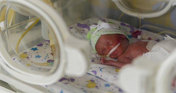 Заміна кисневих елементів апаратів неінвазивної вентиляції легенів у двох лікарнях